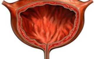 Лечение цистита при грудном вскармливании: народные методы