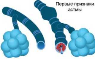 Астма: первые признаки, причины возникновения и лечение астмы