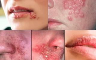 Лечение герпеса на лице быстро