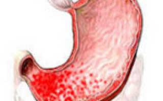 Антральный гастрит: симптомы и лечение