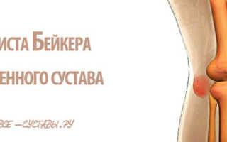 Киста Бейкера коленного сустава: симптомы, терапия