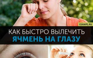 Ячмень на глазу: как лечить?