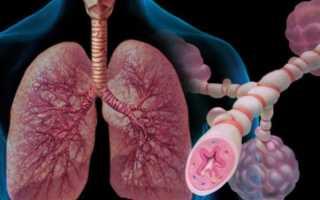 Бронхиальная астма: классификация заболевания