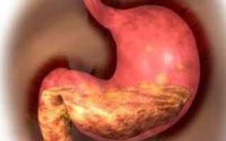 Очаговый атрофический гастрит: симптомы, лечение