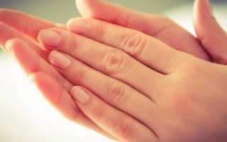 Гипергидроз: лечение недуга