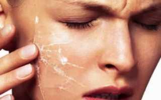 Чувствительная кожа лица: правильный уход
