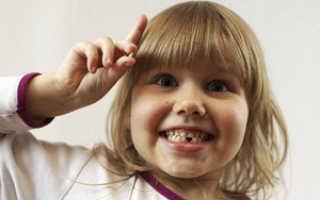 Зубы у детей молочные: смена их на постоянные