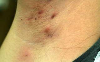 Фурункул под мышкой: причины, лечение