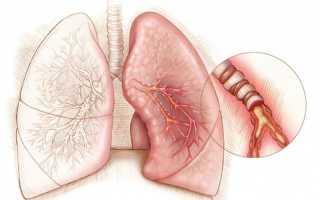 Приступ бронхиальной астмы: неотложная помощь