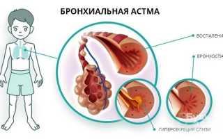 Бронхиальная астма у детей: причины и лечение