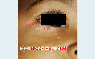 Моллюски на коже: симптомы, причины заболевания, лечение