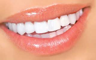Отбеливание зубов перекисью водорода – допустимо ли это?