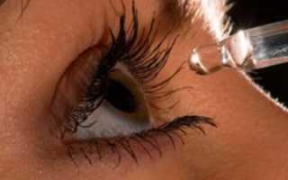 Синдром Шегрена: симптомы и лечение
