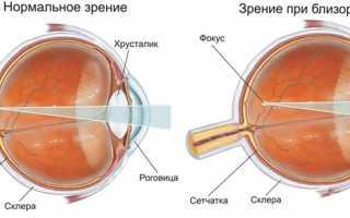 Близорукость: симптомы и возможные причины миопии