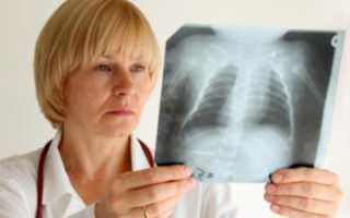 Пневмония лечение, симптомы. Пневмония у детей