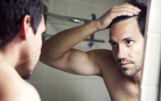 Выпадение волос: причины и профилактика
