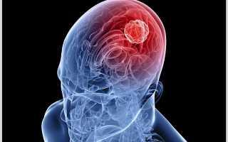 Киста головного мозга: основные причины возникновения, терапия
