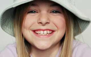 Первые молочные зубы у детей и их количество
