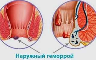 Лечение наружного геморроя при беременности