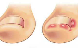 Вросший ноготь на ноге: лечение дома