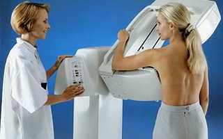 Заболевания молочной железы: мастит, мастопатия и опухоли