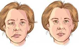 Неврит лицевого нерва: лечение