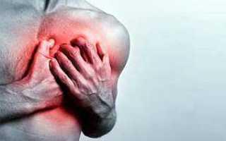 Межреберная невралгия: симптомы, лечение