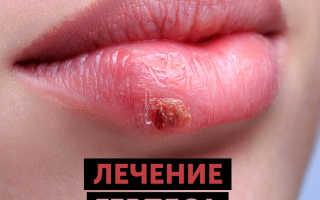 Как быстро вылечить герпес на губах – простые советы