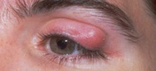 Жировик в глазу: что это, почему появляются и как его удалить?