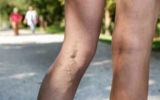 Чем опасен варикоз на ногах