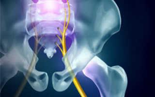 Воспаление седалищного нерва: лечение