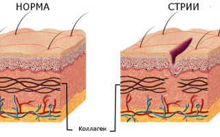 Растяжки на коже – причины их возникновния и способы устранения